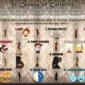 14 causes de la cellulite