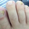 17 remèdes maison pour mycose des ongles
