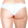 ! Qu'est-ce que la cellulite?
