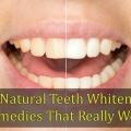 14 dents naturelles blanchissant remèdes qui fonctionnent vraiment