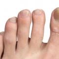 35 Accueil recours pour le traitement de mycose des ongles