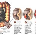 Le cancer du côlon: causes, symptômes, signes et traitement