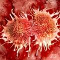 """Guérir les cancers évolués d'aujourd'hui """"pourrait être impossible"""""""