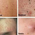 Types d'acné différentes et des façons de les identifier?
