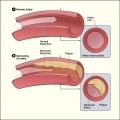 Vitamine début d carence liée à des lésions de l'artère à l'âge adulte