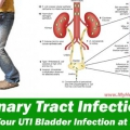Les remèdes maison qui sont très efficaces sur les infections des voies urinaires