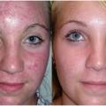 Comment atténuer les cicatrices d'acné? (Y compris les remèdes à la maison)