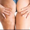 Comment se débarrasser de la cellulite rapidement et naturellement