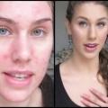 Comment se débarrasser des cicatrices Pimple?