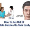 Comment se débarrasser des taches blanches sur la peau facilement