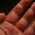 Comment traiter une brûlure naturellement et facilement?