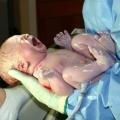 Augmentation du risque de décès chez les bébés de culasse lors de l'accouchement