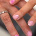 Les femmes des minorités avec le cancer du sein peuvent ne pas savoir assez sur leur maladie