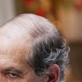 La plupart des hommes souffrent de la perte de cheveux: remèdes naturels qui fonctionnent réellement