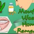 Remèdes naturels pour les aphtes