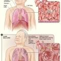 NIH médecine Plus Magazine automne 2014 parle de la MPOC