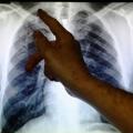 Le temps chaud augmente les facteurs de risque pour les infections pulmonaires chroniques: étude