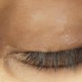 10 meilleurs remèdes maison pour guérir les yeux Rash