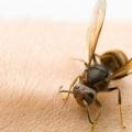 10 efficaces remèdes maison pour les piqûres d'insectes