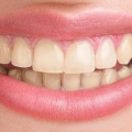 10 efficaces remèdes maison pour les dents jaunes