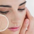10 meilleurs conseils pour la peau sèche