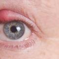 20 efficaces remèdes maison pour Eye Orgelet