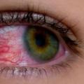 20 efficaces remèdes maison pour Sore Eyes