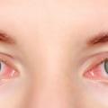 21 efficace Accueil recours pour les yeux rouges