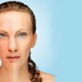 25 conseils simples pour enlever pigmentation de la peau