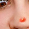 5 façons simples pour enlever les boutons sur le nez