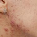 5 façons simples pour enlever les taches rouges sur la peau?