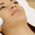 5 types de traitements laser pour cicatrices d'acné et de leurs avantages