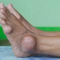 6 conseils de régime alimentaire pour maintenir Gout In Control