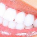 7 façons simples pour blanchir les dents