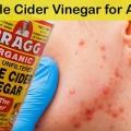 Le vinaigre de cidre pour l'acné
