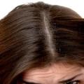 Meilleures huiles pour cheveux anti-pellicules disponibles sur le marché