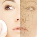 Meilleures correcteurs pour la peau sèche