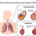 Accueil recours pour la bronchite