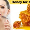 Miel pour l'acné