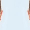 Comment l'huile de ricin ne réduit pigmentation de la peau?