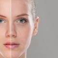 Comment traiter teint de peau inégal?