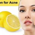 Citron pour l'acné