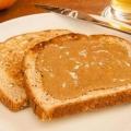 Top 10 des aliments à manger pour des os sains