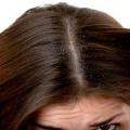 Top remèdes pour arrêter les démangeaisons du cuir chevelu des pellicules