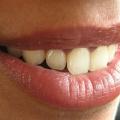 Meilleures huiles aide à guérir les lèvres gercées sèches à la maison