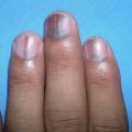 Quels sont les effets des carences nutritives sur les ongles et comment y remédier?