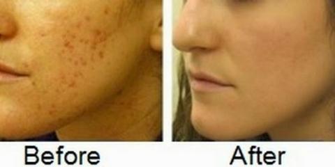 Top 11 remèdes pour éliminer les cicatrices d'acné