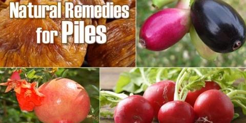 8 remèdes naturels faciles pour les piles (hémorroïdes)