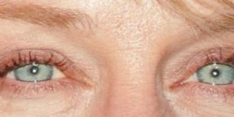 Sur les faits concernant l'acide hyaluronique que peut lutter contre le vieillissement de la peau