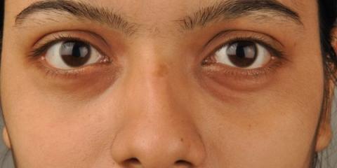 Plusieurs facteurs peuvent causer des cernes sous les yeux